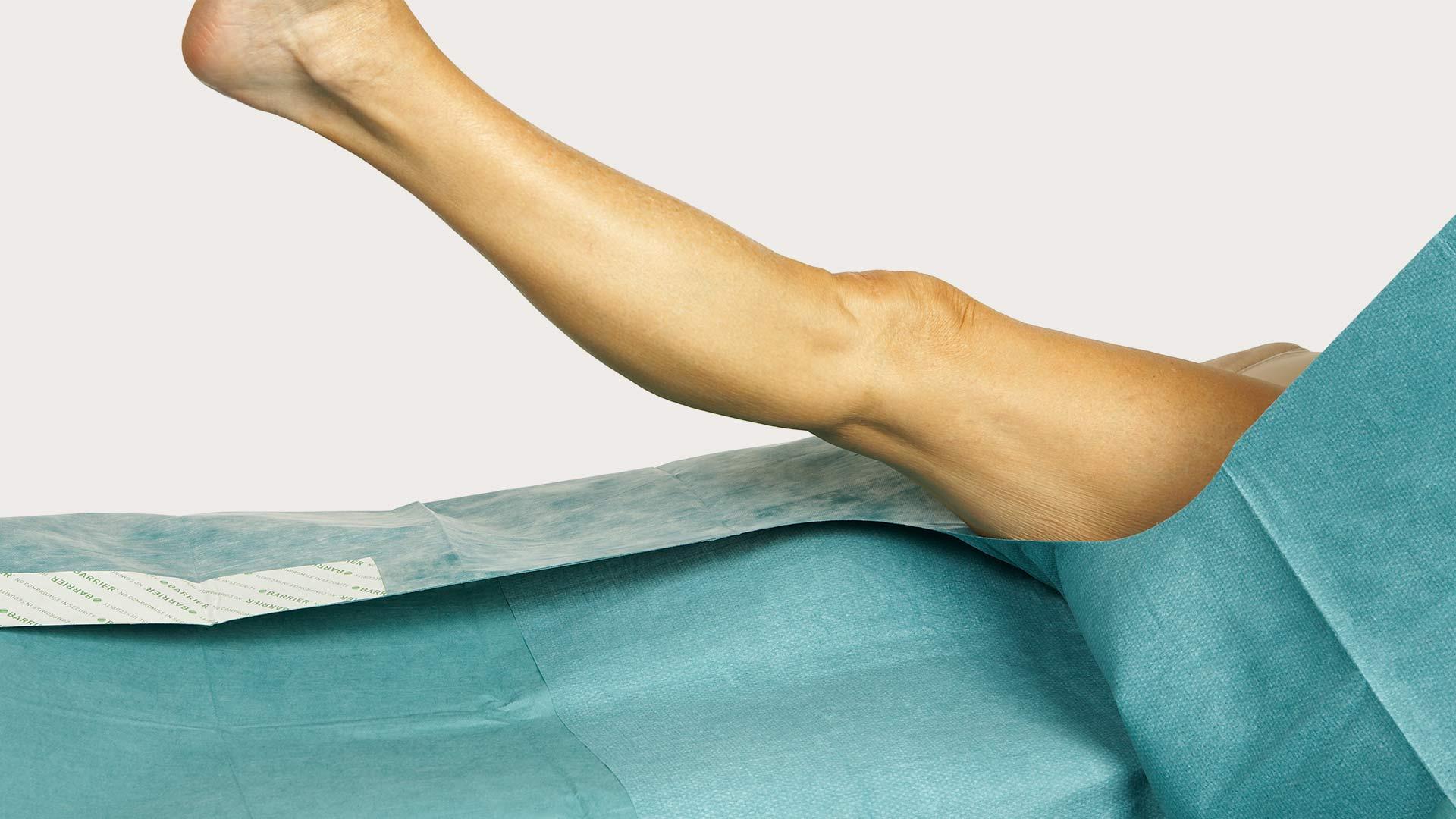 barrier split sheet drapes for a large variety procedures mölnlycke